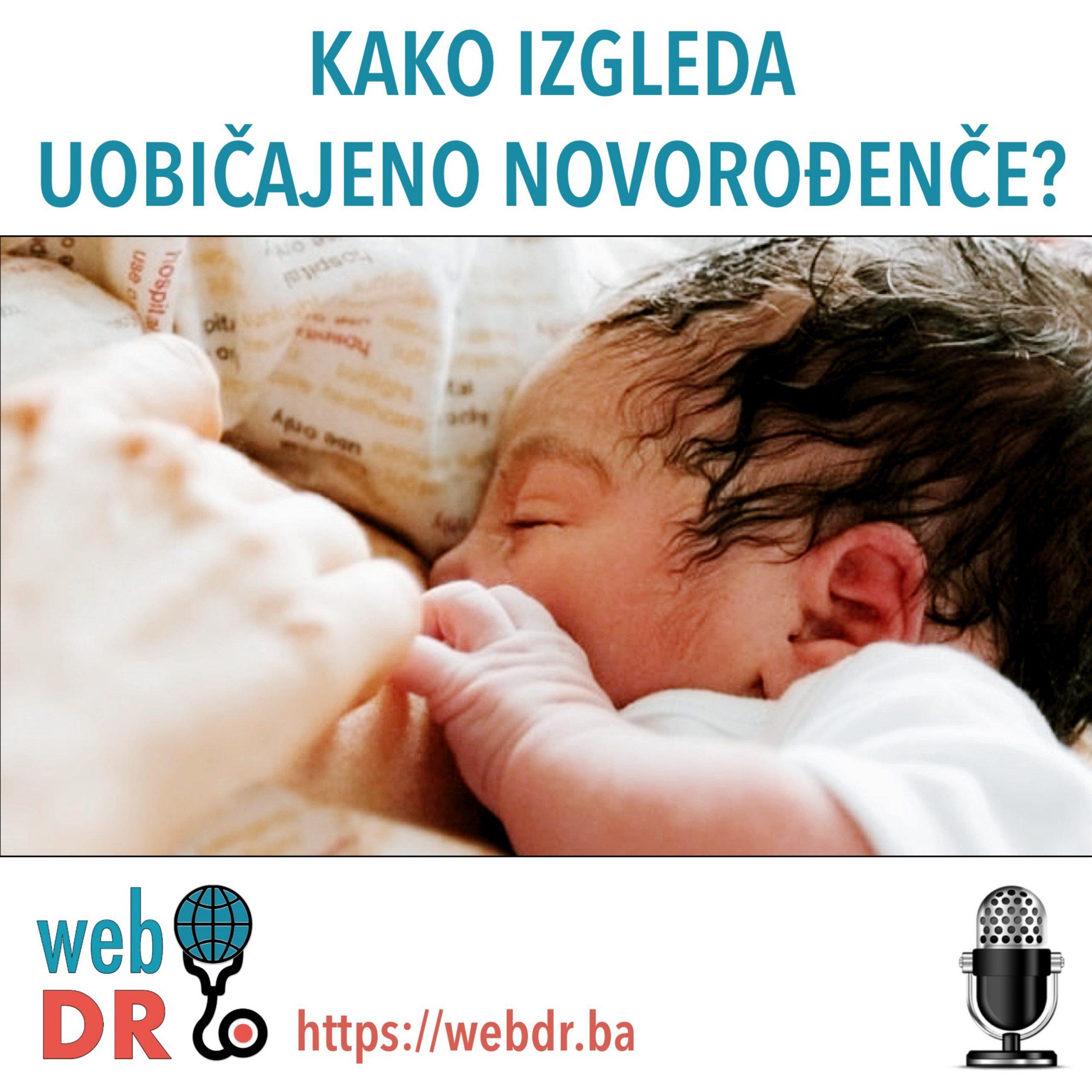 Kako izgleda uobičajeno novorođenče?